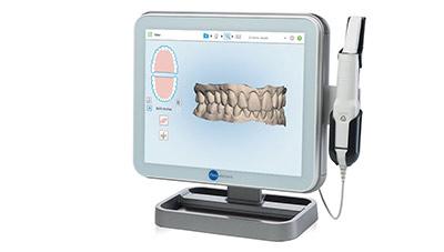 3d-scanner-itero-kieferorthopaedie-in-hemer