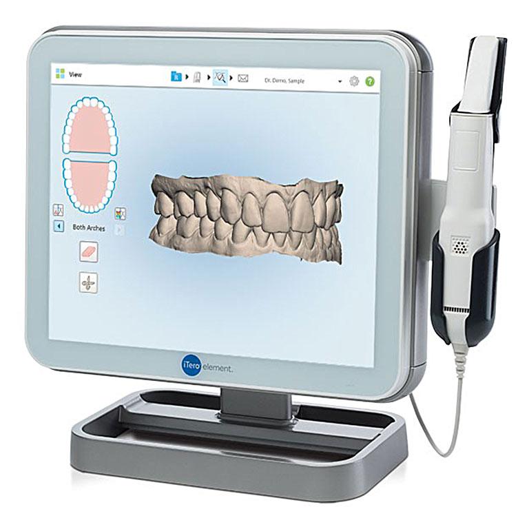 3d-scanner-itero-kieferorthopaedie-in-hemer-dr-butzeck